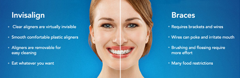 Invisalign benefits list