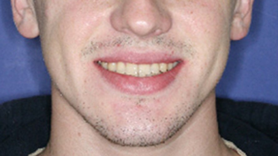 Man after dental work with full set of teeth