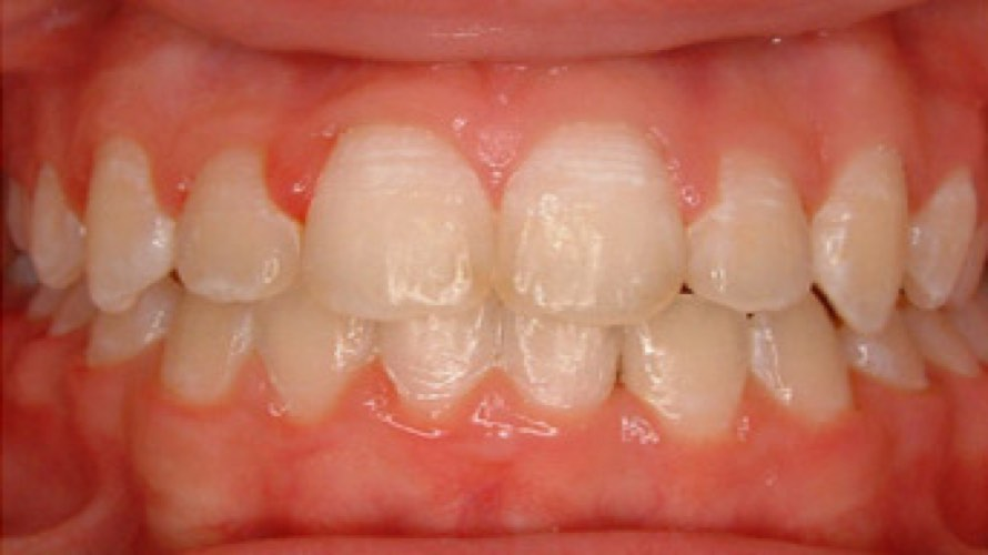 After photo of teeth with gaps and crooked teeth straightened