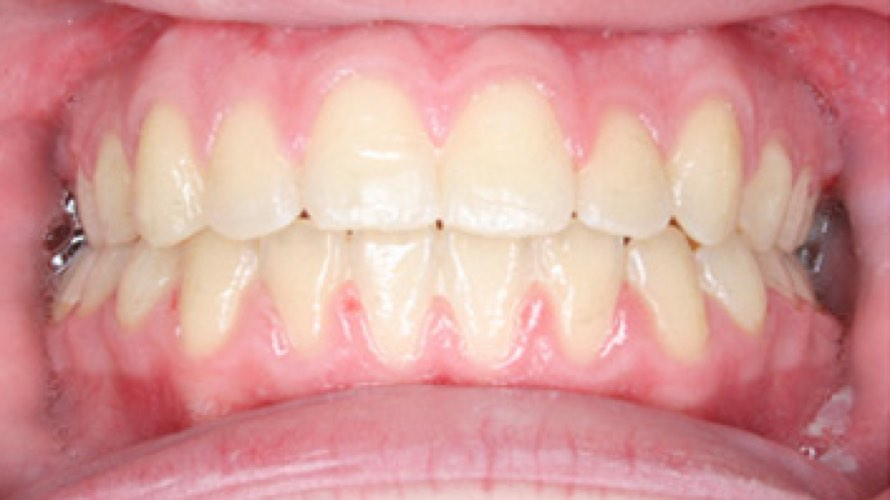 After photo of teeth of crooked teeth straightened
