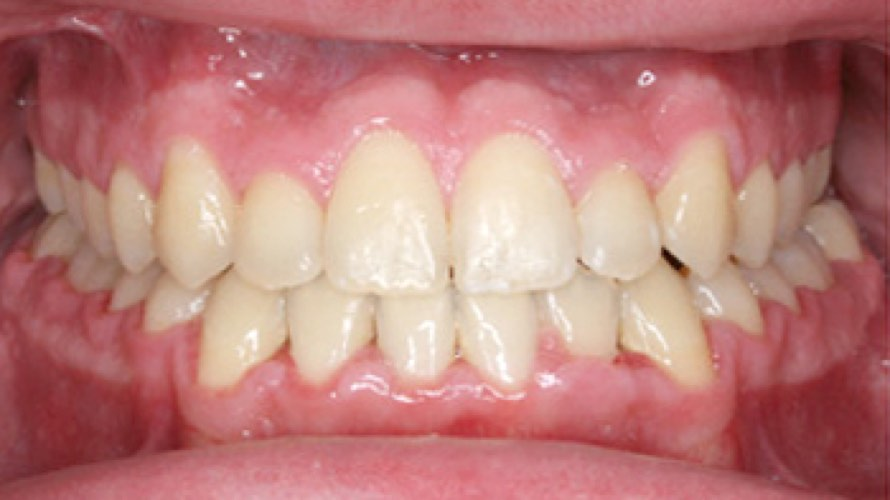 After photo of teeth fixed
