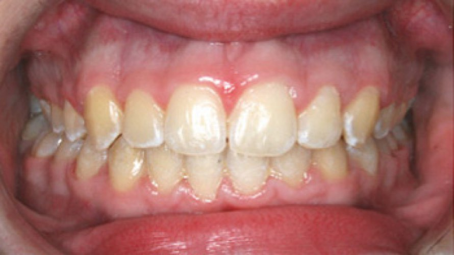 After photo of overbite fixed