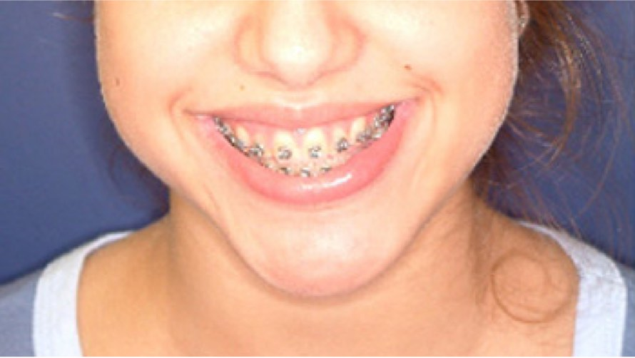 Woman with braces before