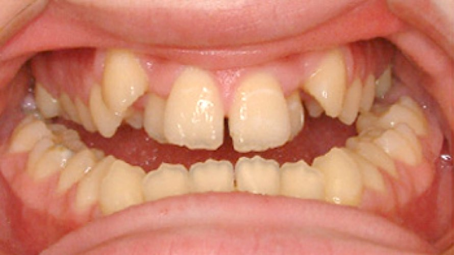 Before photo of teeth grown behind one another
