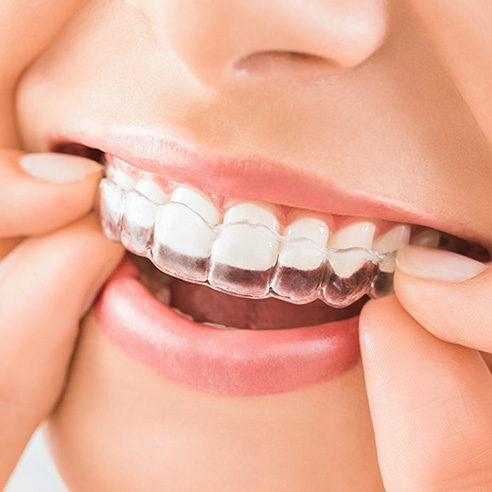 Invisalign & Clear Aligners